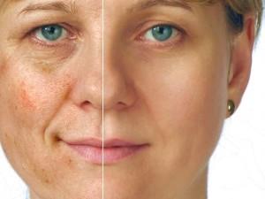 697207-Causas-e-tratamentos-para-peles-manchadas-2