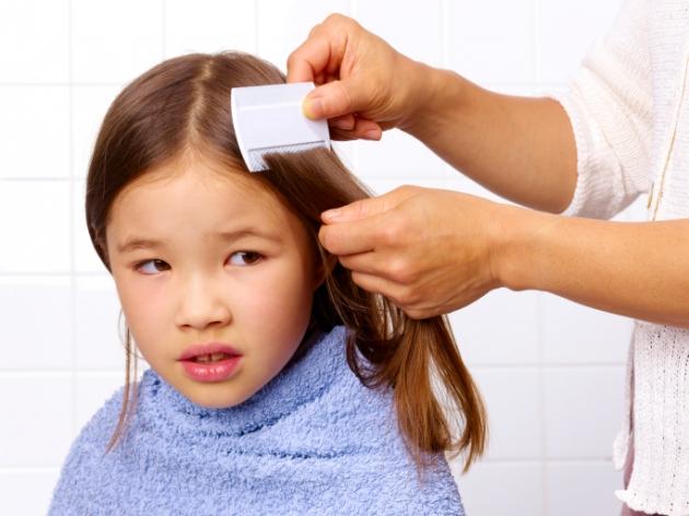 piolhos na cabeça da criança como evitar piolhos - drogadelia itapecerica da serra