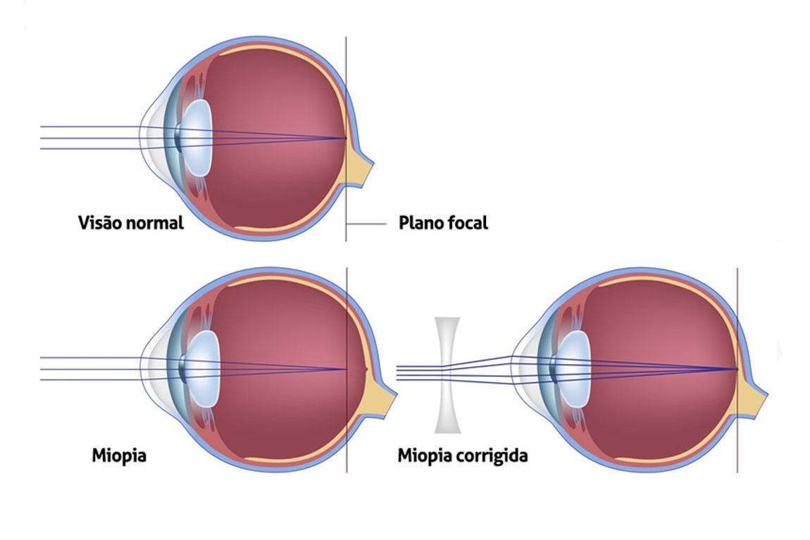lente para miopia
