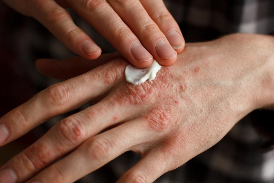 doenças de pele no frio