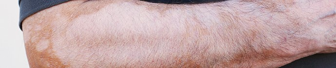 mau de vitiligo